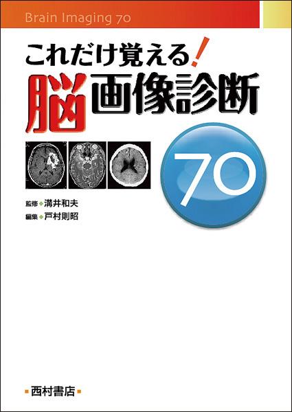 『これだけ覚える!脳画像診断70』