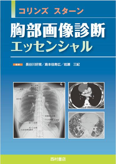 『コリンズ スターン 胸部画像診断エッセンシャル』