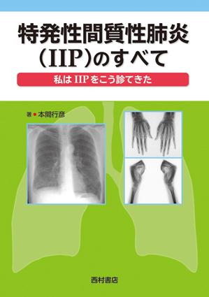 『特発性間質性肺炎(IIP)のすべて』