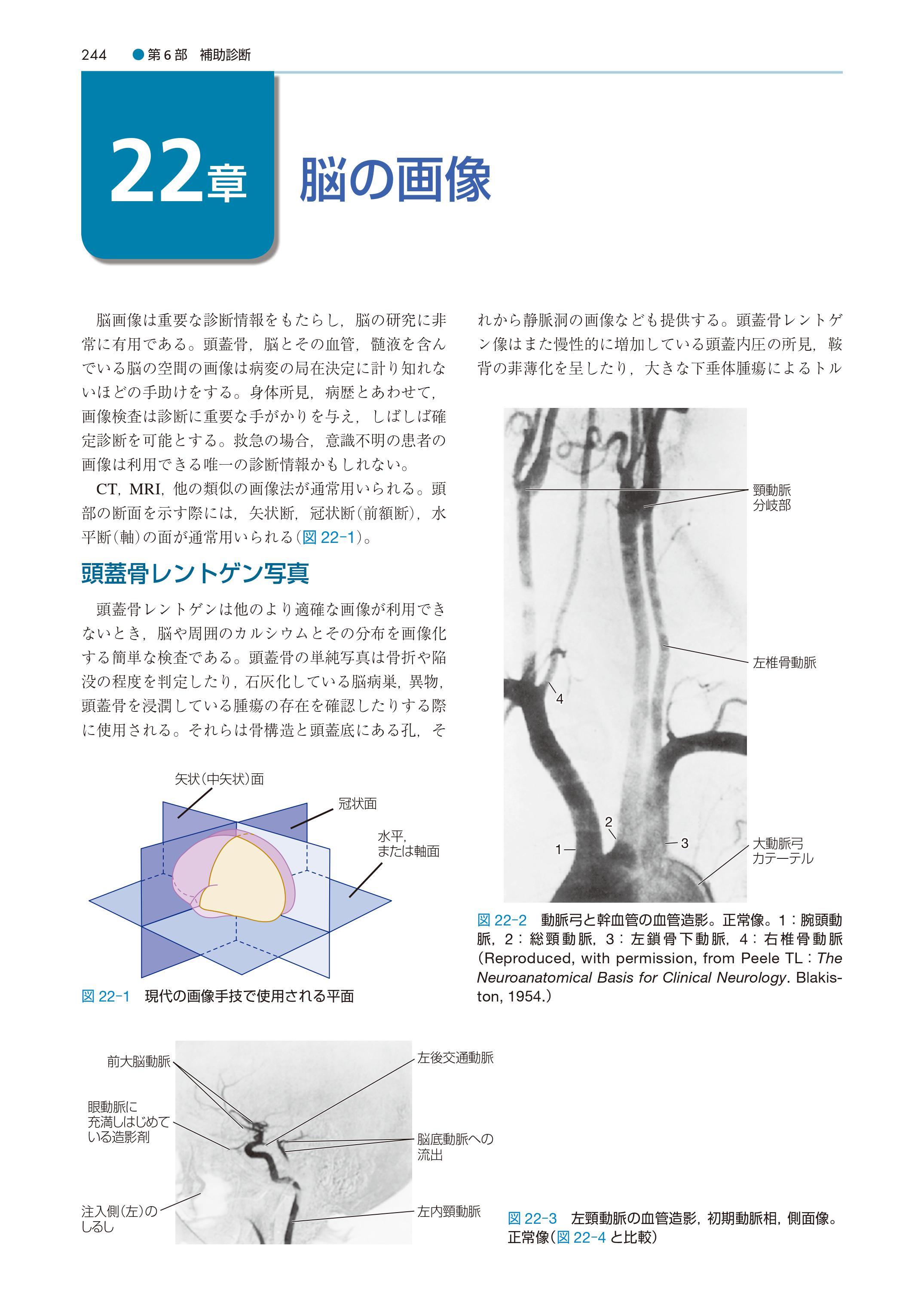 『ワックスマン脳神経解剖学』中身ページ244