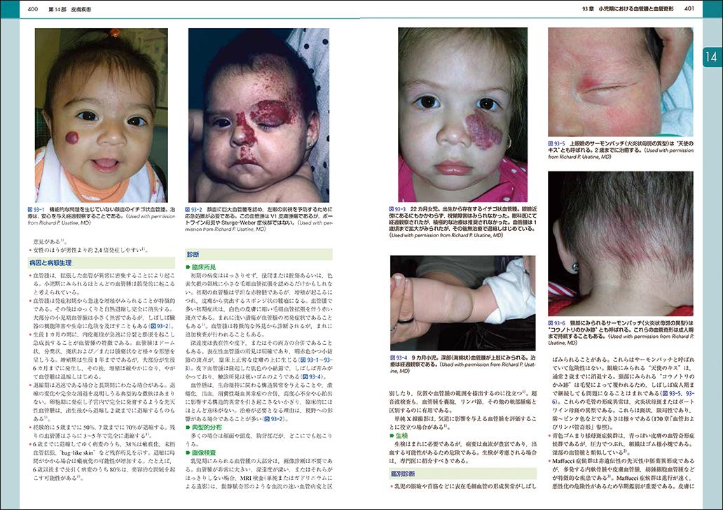 『国際診療のための小児科アトラス大事典』400-401